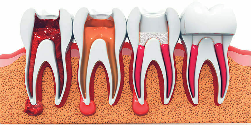 Root Canal Therapy / Endodontics