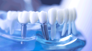dental implants - dental office